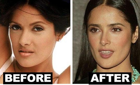 Salma-Hayek-Nose-job-Before-After-Photos-1